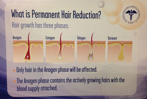 how-laser-hair-removal-works